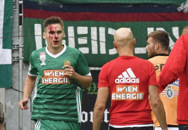 Max Wöber verletzte sich im Spiel gegen Sturm.APA